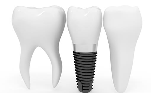 Dental Implants, Cobourg Dentist
